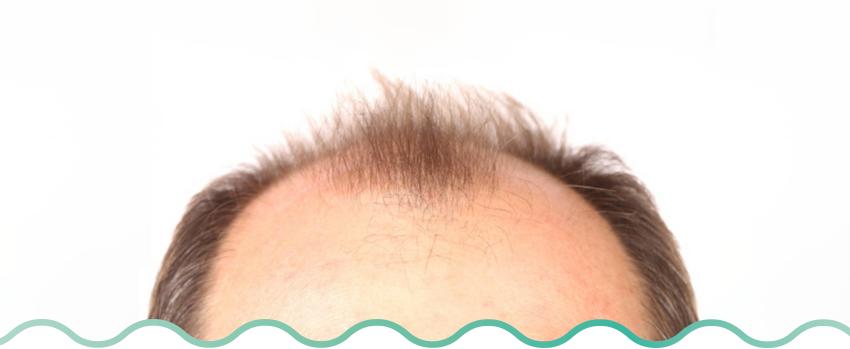 alopecia androgenetica masc